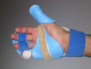 Private UE Splinting/Orthosis Courses